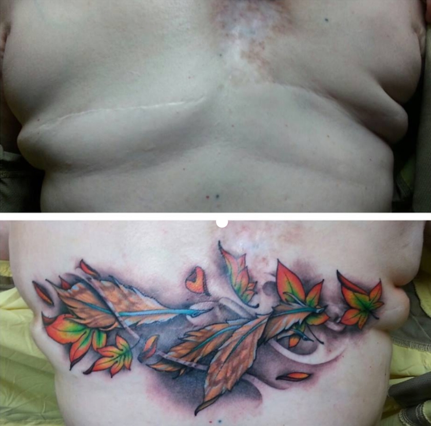 MastectomyScarBeforeAfterTattoo